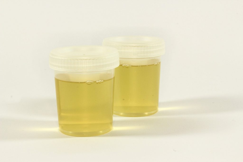 urine sample in bottles